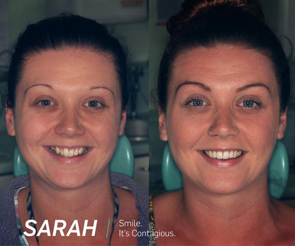 sarah before after